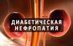 Диабетическая нефропатия — стадии и лечение