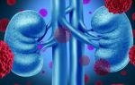 Признаки и лечение светлоклеточного рака почек