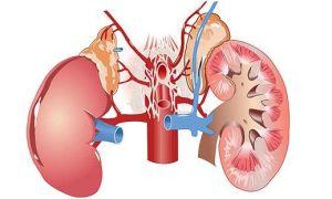 Пиелоэктазия почек: причины, симптомы, лечение