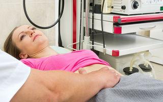 Цистоскопия мочевого пузыря у женщин