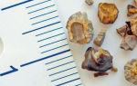 Способы дробления камней в почках