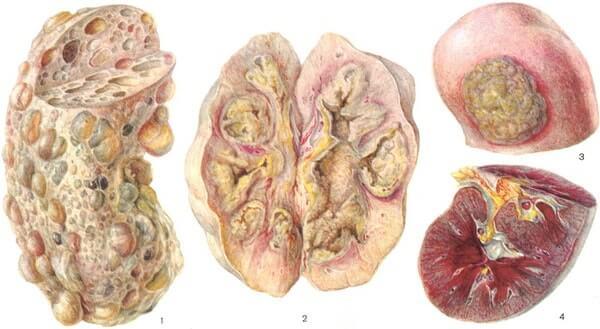 Осложнения пиелонефрита- абсцесс почки