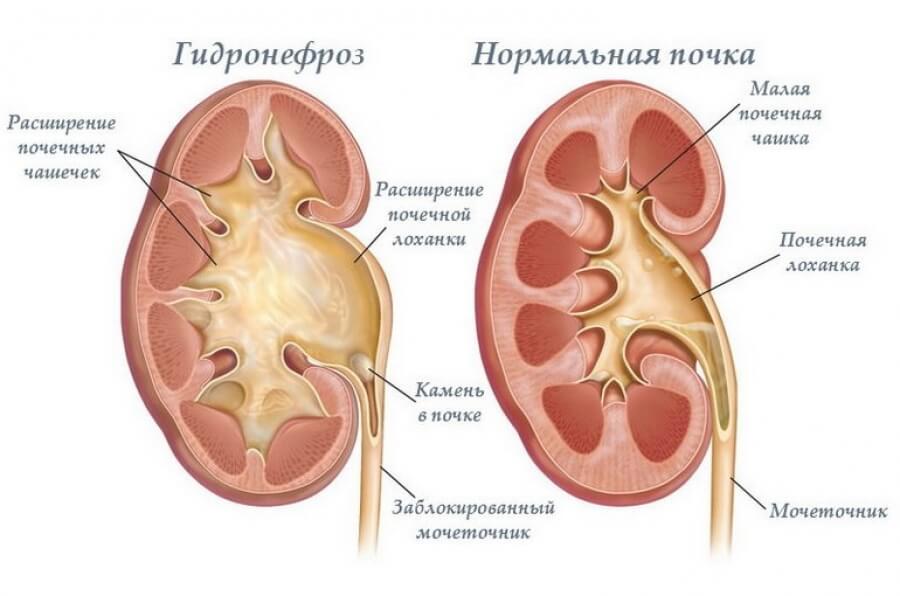 Гидронефроз схема болезни