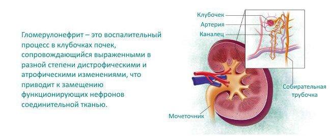 Гломерулонефрит симптомы и лечение