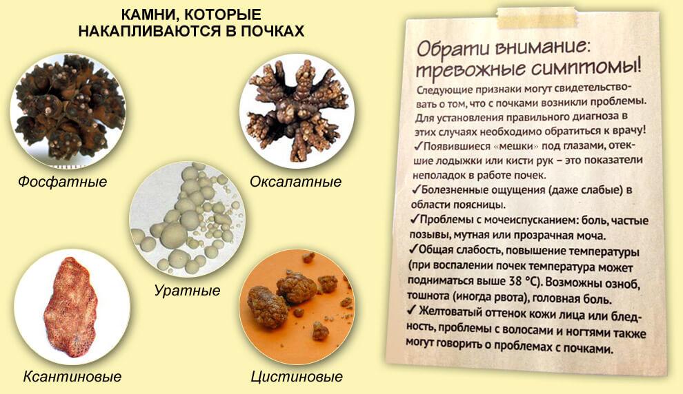 разновидность камней в почках