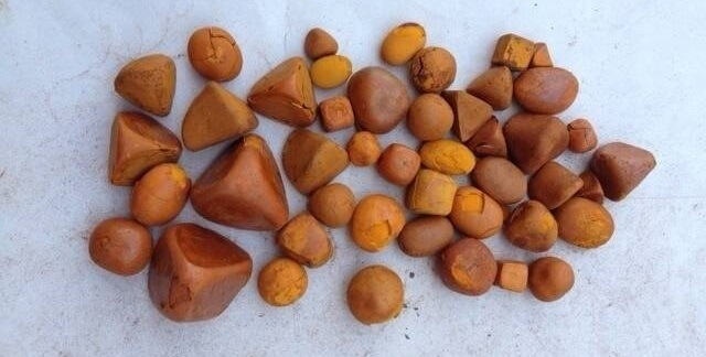 Камни в почках