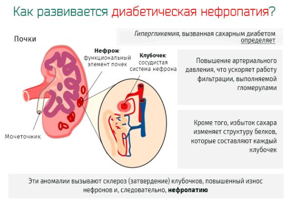 Развитие диабетической нефропатии