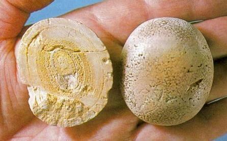 Уратные камни