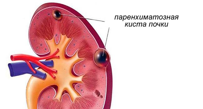 Паренхиматозная киста левой почки лечение