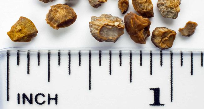 размер окасалатных камней