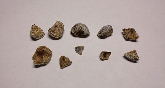 Камни в мочевом