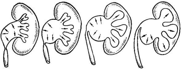 Пиелоэктазия схема