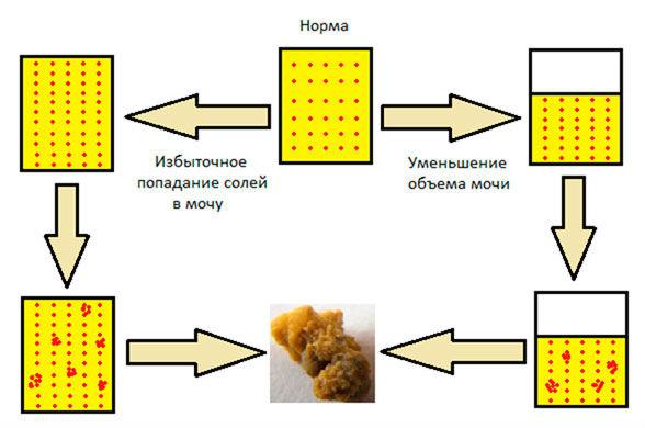 Причина появления солей в организме