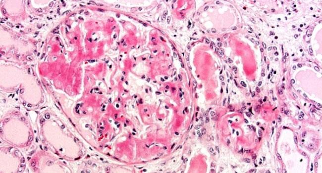 Амилоидоз ткани