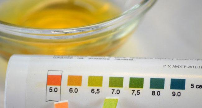 Показатели мочи при гломерулонефрите: симптомы, специфика, расшифровка