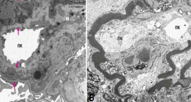 Мембранный гломерулонефрит