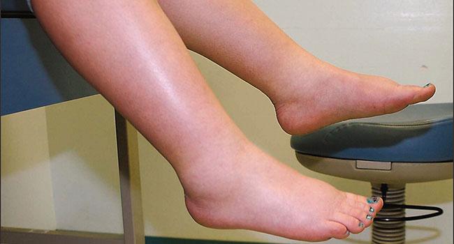 Особенности проведения ультразвукового исследования с допплерографией почек